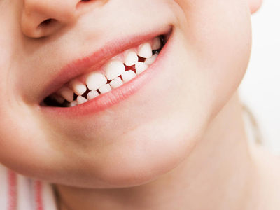 What Can I Do to Decrease My Child's Chances of Getting Cavities?