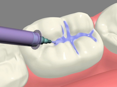 Dental Sealants: Seal Out Tooth Decay