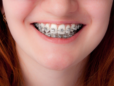 What Is a Good Time for Kids to Get Braces?